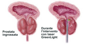 2-prostata