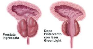 3-prostata