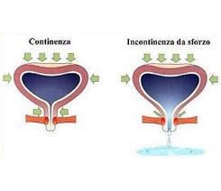 Incontinenza urinaria da sforzo