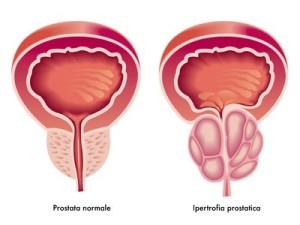 ipertrofia prostatica benigna, una possibile causa di nocturia