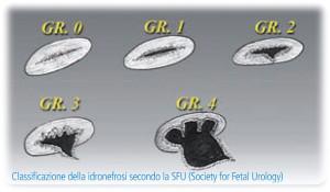 Classificazione-della-idronefrosi-secondo-la-SFU-Society-for-Fetal-Urology