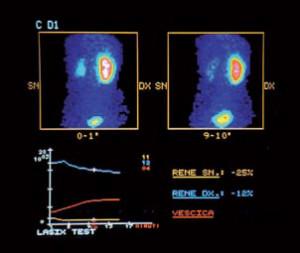 urologia pediatrica