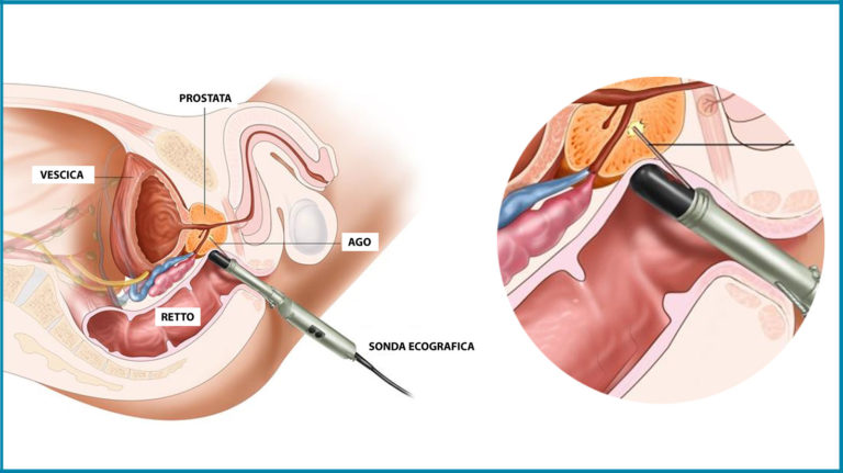biopsia prostatica nicola ghidini urologo